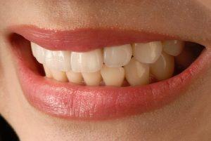 bruxisme tandenknarsen klachten kaak fysiotherapie